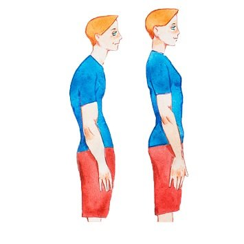 Діагностика сколіозу. Симптоми протрузії поперекового відділу хребта.